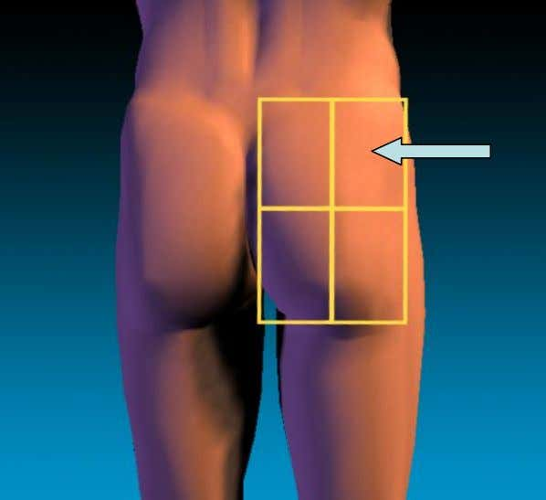 Traditionally nurses were told to divide the buttocks into four quadrants INJECT INTO THE UPPER OUTER