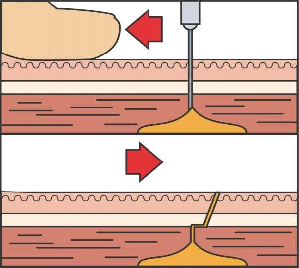 Injections Intramuscular Injections Pull skin taut then Insert needle Z tracking Procedure Remove needle and release