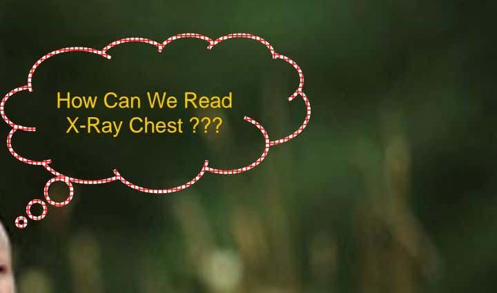 How Can We Read X-Ray Chest ???
