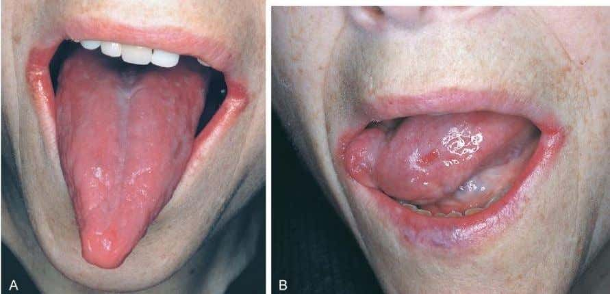 Clinical Features and Oral Manifestations of Pernicious Anemia