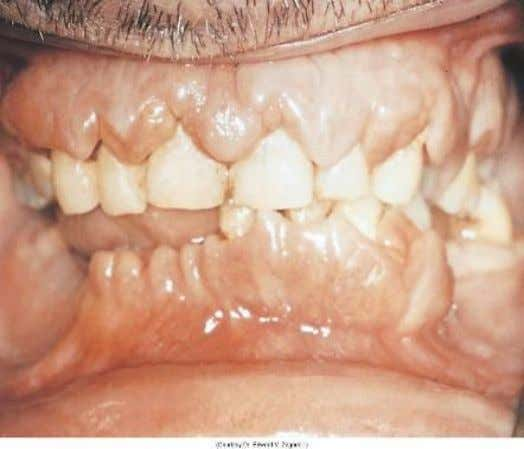 lymph nodes, and bleeding  Gingival enlargement  Oral infection  Bleeding gums, petechiae and ecchymosis