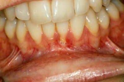 mobility of tongue  salivary hypofunction Limited mouth opening and decreased tongue mobility Gingival retraction