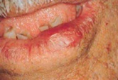and palate  Tumor like swelling of salivary glans  Swelling of the tongue  Xerostomia