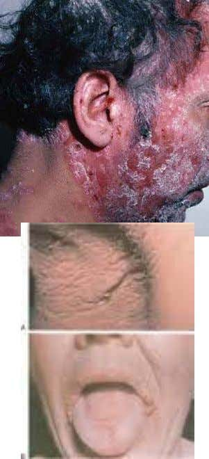 Cutaneous diseases Psoriasis  Oral signs  Fissured tongue Small white papules Red and white plagues