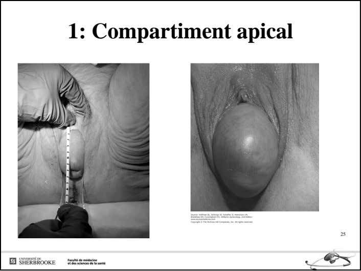 1: Compartiment apical 25