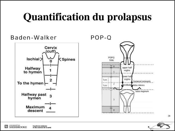 Quantification du prolapsus Baden-Walker POP-Q 28