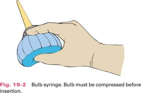 Fig. 19-2 Bulb syringe. Bulb must be compressed before insertion.