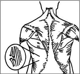 - tearing or stretching of muscles, tendons or ligaments as shown in Figure 2.6. Figure 2.6
