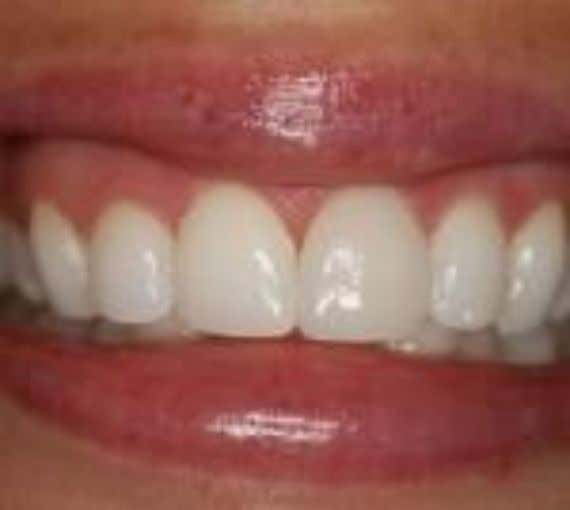 Dental causes  Premature loss of permanent teeth causing lingual collapse of anterior teeth  Anterior