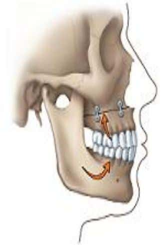 Complex or skeletal open bite  Early diagnosis is crucial- since it helps to minimize the