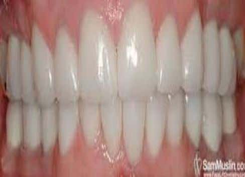  1-2mm overlap of lower incisors is normal and it is known as Overbite  When