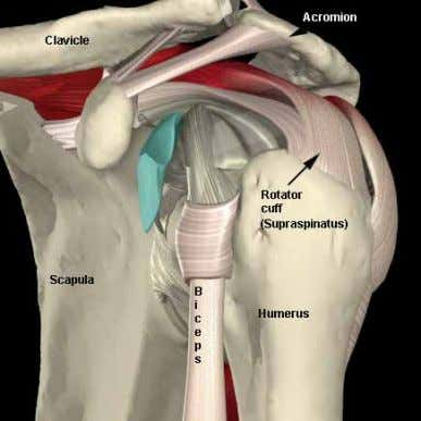around the part of the shoulder that is causing the problem. If an injection into the