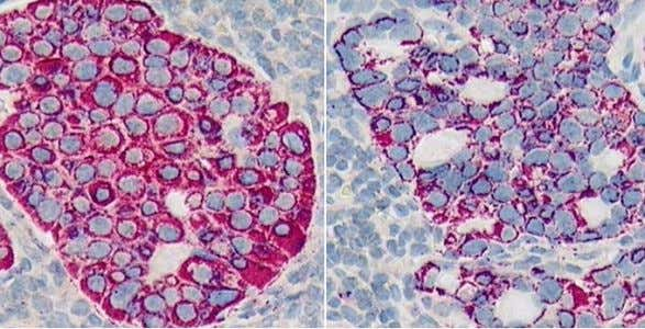 Figure 7: Both images are from the same lymphnode from the Kohrt study[1]. The stained