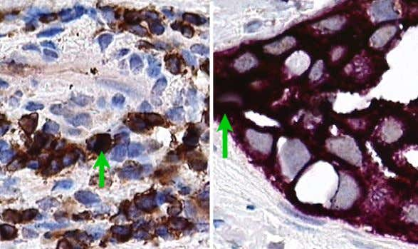 Figure 8: The image on the left shows T-cells stained for CD4 with DAB brown.