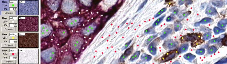 Figure 2: An example of color selection in an immunohistochemically stained lymphnode from the Kohrt