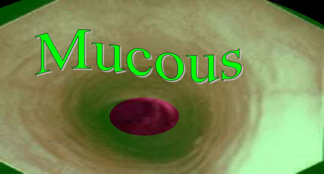 is covered with a slimy mucous that aids movement. – (12 seconds to travel to stomach)