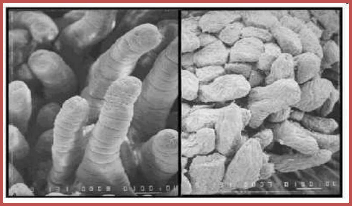 The small intestine is covered with millions of small fingerlike structures called villi. Copyright © 2010