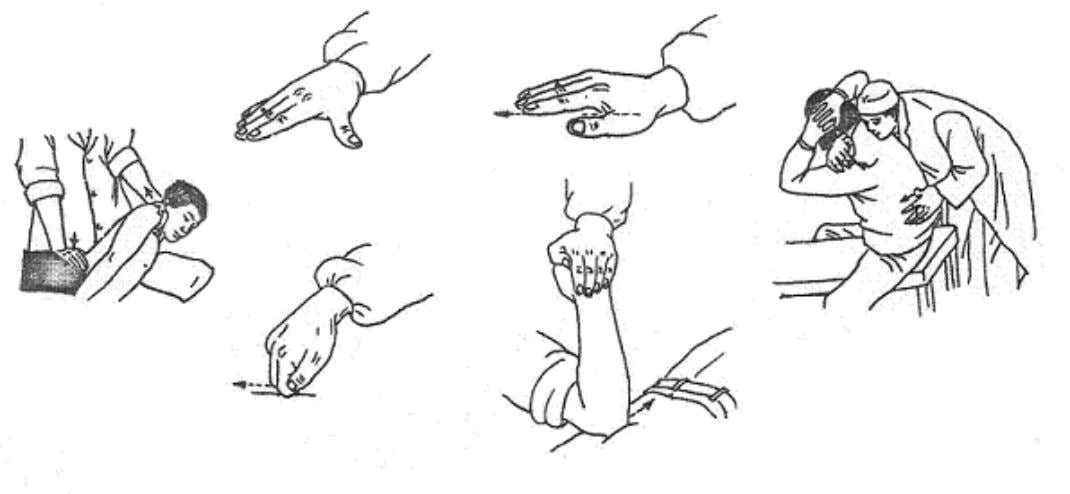Tui Na Hand Positions