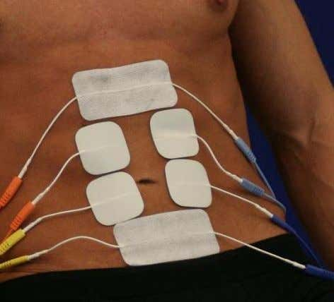 but more apart from each other. RECTUS ABDOMINIS – Six Electrode Pads To stimulates the