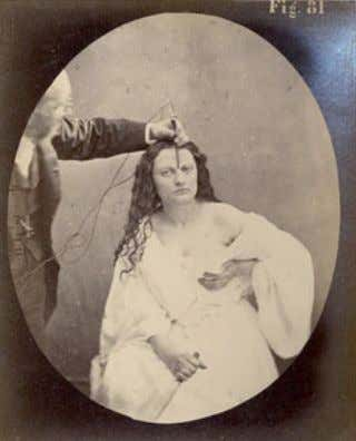 "Duchenne de Boulogne , ""Lady Macbeth"", en The Mechanism of Human Facial Expression (1862) lidad,"