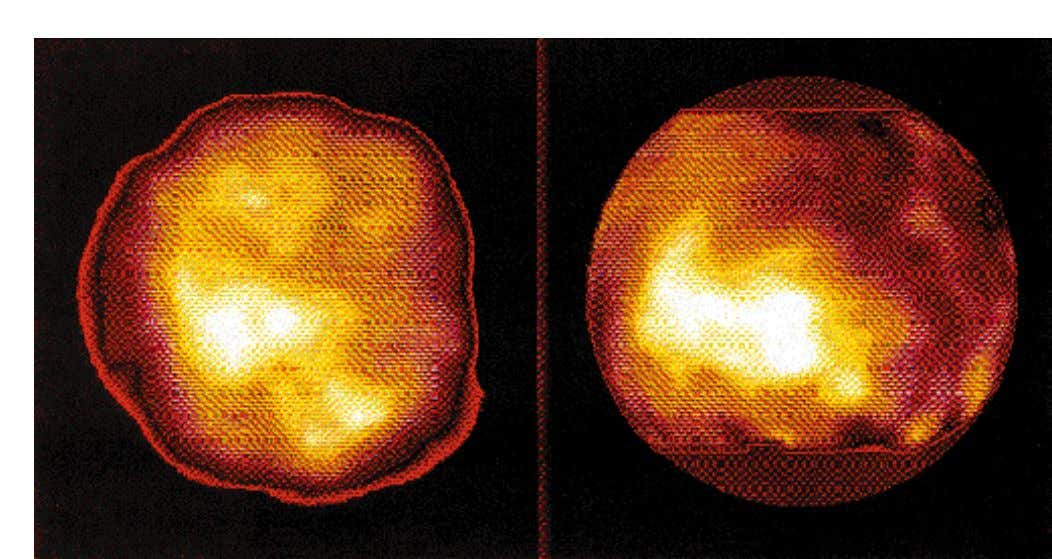Figure 4: Titan's surface: ADONIS image at 2 micron on the left and Hubble Space