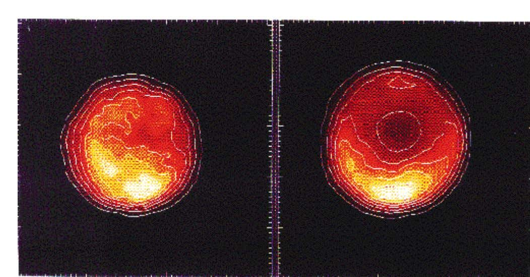 Figure 2: Titan observed in the K1 and K2 narrow-band filters, centred at 2.0 and