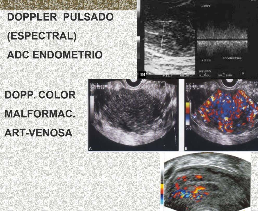 DOPPLER PULSADO (ESPECTRAL) ADC ENDOMETRIO DOPP. COLOR MALFORMAC. ART-VENOSA