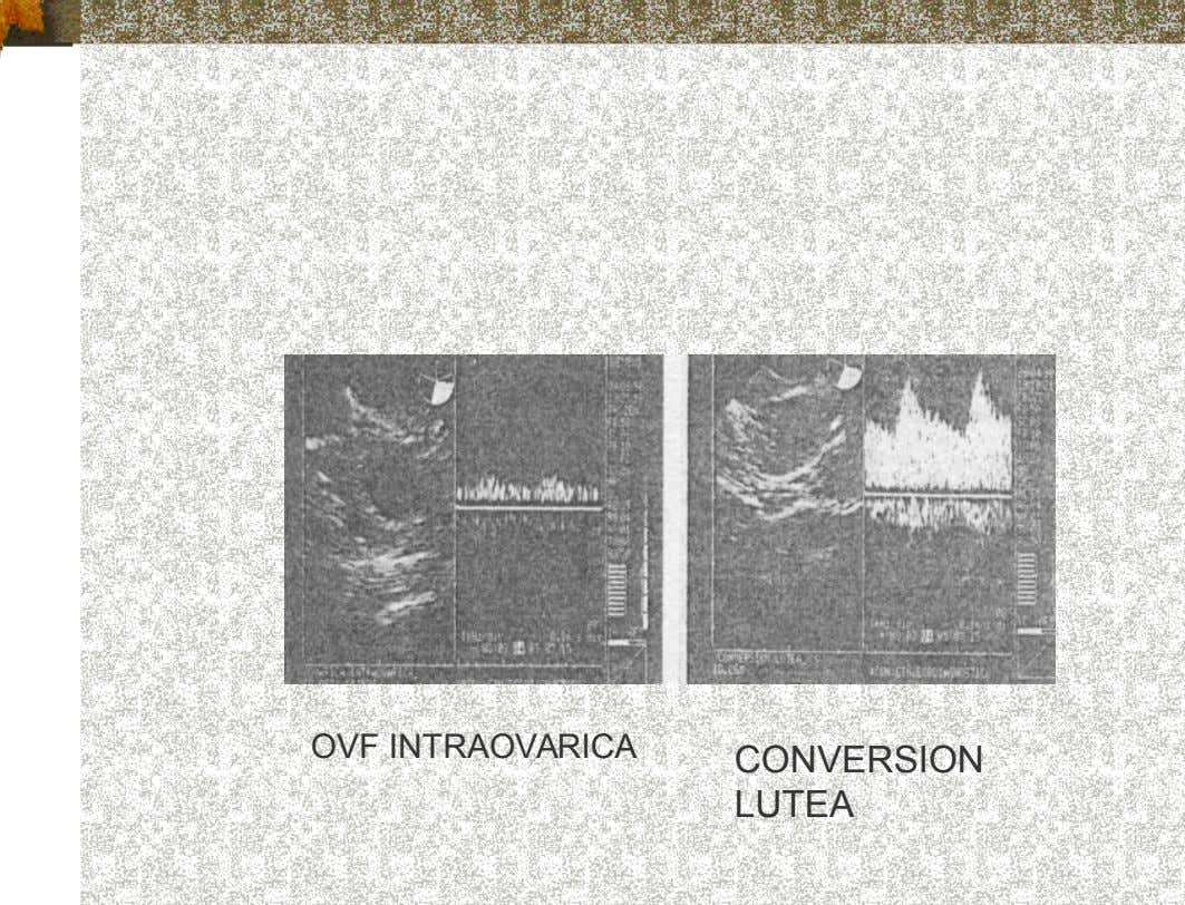 OVF INTRAOVARICA CONVERSION LUTEA