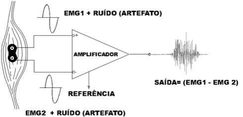 is actually a good antenna for electromagnetic energy [3]. Figure 4. A) Schematic representation of a