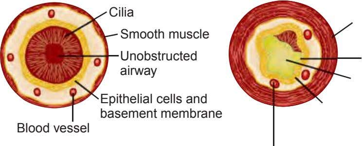 Cilia Smooth muscle Unobstructed airway Epithelial cells and basement membrane Blood vessel
