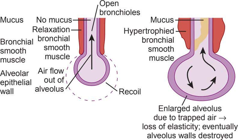 Open bronchioles Mucus No mucus Mucus Relaxation Hypertrophied bronchial bronchial Bronchial smooth smooth