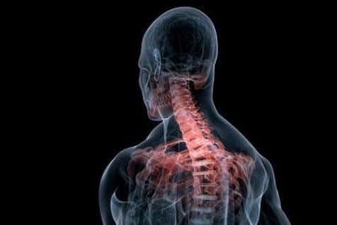 NECK PAIN Neck pain is a very common problem, affecting about 10 percent of the adult