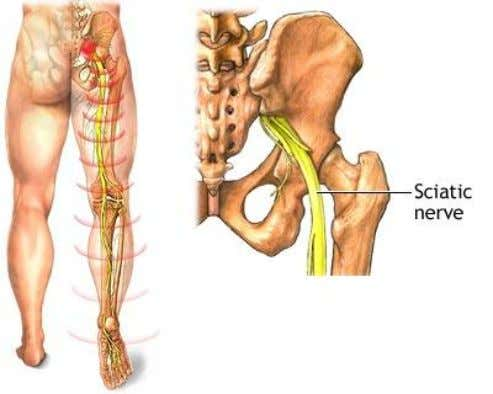 SCIATICA Sciatica is a common type of pain affecting the sciatic nerve, a large nerve extending