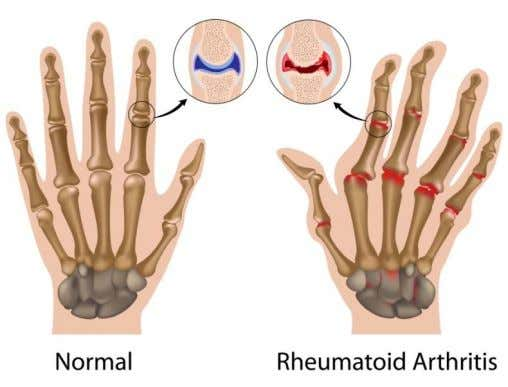 ARTHTRITIS Arthritis is inflammation of one or more of your joints. The main symptoms of arthritis