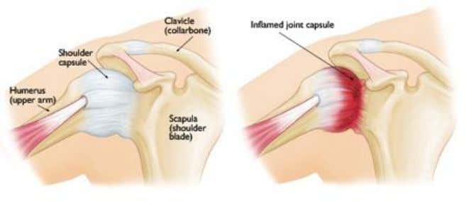FROZEN SHOULDER Frozen shoulder, also known as adhesive capsulitis, is a condition characterized by stiffness and