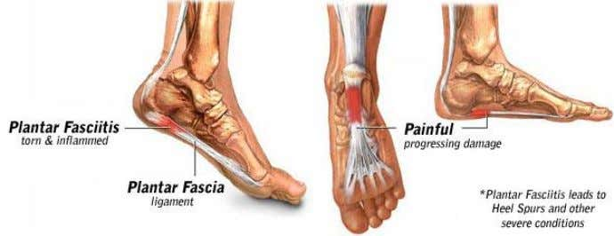 PLANTAR FASCIITIS Plantar fasciitis (PLAN-tur fas-e-I-tis) is one of the most common causes of heel pain.