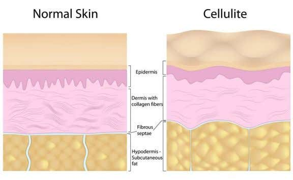 CELLULITE Cellulite is a term for lumpy, dimpled flesh on the thighs, hips, buttocks and abdomen.