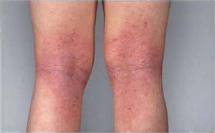ECZEMA Atopic dermatitis (eczema) is a condition that makes your skin red and itchy. It's common