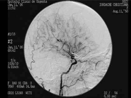 of cerebral angiography, which he discovered (11). Figure 3 A, B Control angiography one month after