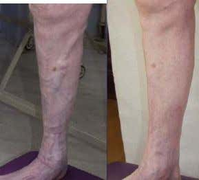 May 12, 2007 All in vein How does the minimally invasive treatment of varicose veins evolve?