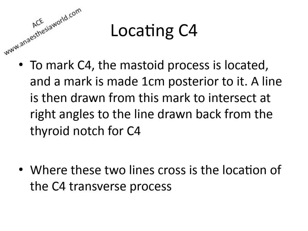 Loca=ng)C4) •   To)mark)C4,)the)mastoid)process)is)located,) and)a)mark)is)made)1cm)posterior)to)it.)A)line)