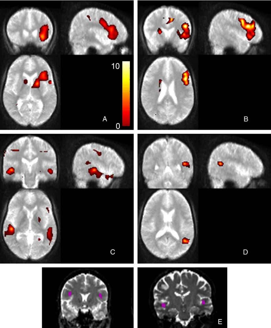 392 H.W.R. Powell et al. / NeuroImage 32 (2006) 388 – 399 Fig. 1. fMRI results: