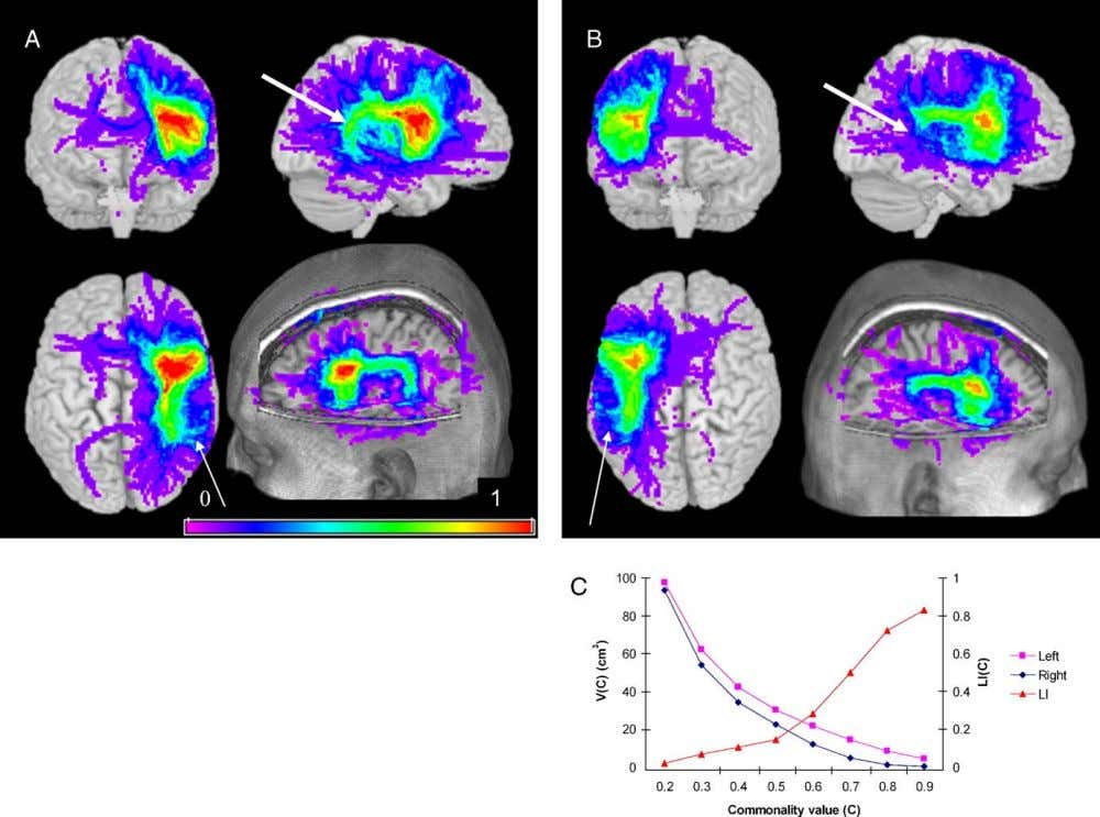 394 H.W.R. Powell et al. / NeuroImage 32 (2006) 388 – 399 Fig. 3. Group variability