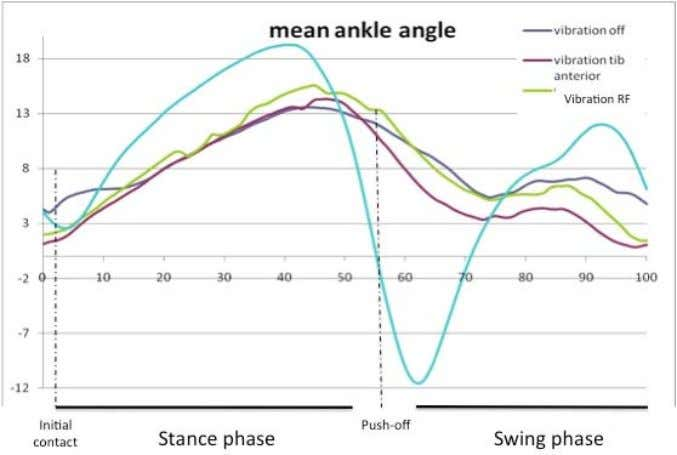 the swing phase in the group of SCI patients. * p=0.028 Figure 2. Mean angle of