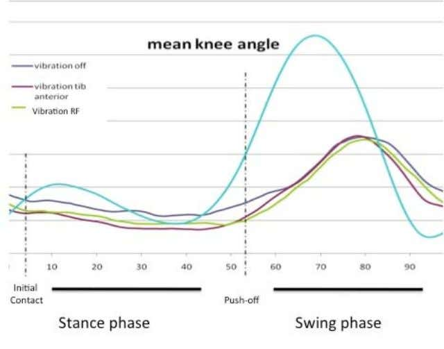 swing phase in SCI patients and controls. ∗ p<0.05. Figure 4. Mean angle of the knee