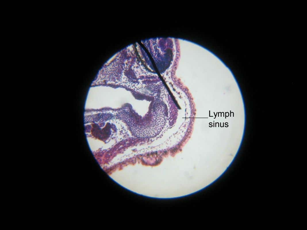 Lymph sinus