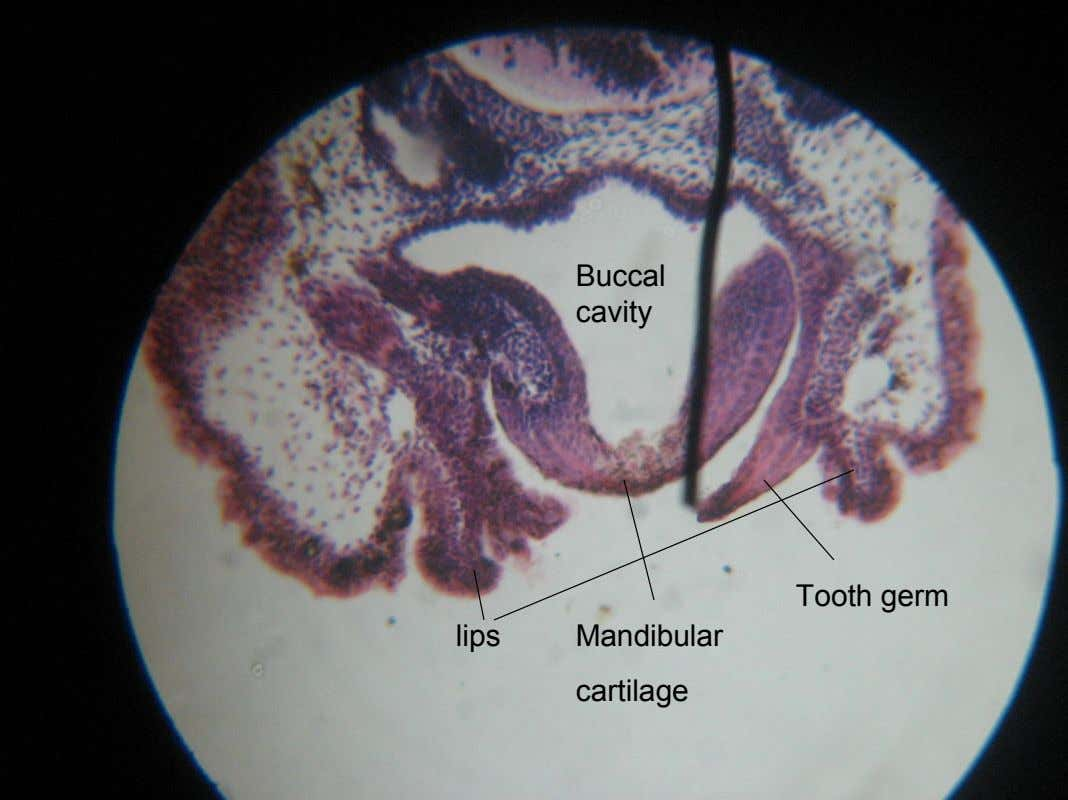 Buccal cavity Tooth germ lips Mandibular cartilage