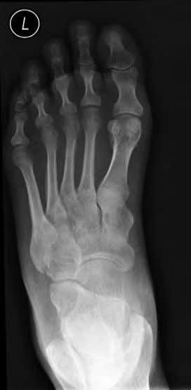 report Undisplaced fracture of the lateral malleolus. F i g . 1 . 6 b D