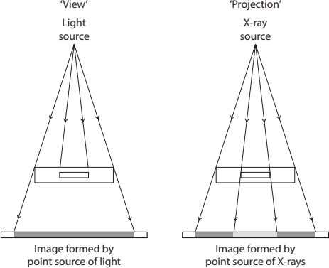 'View' 'Projection' Light X-ray source source Image formed by point source of light Image formed