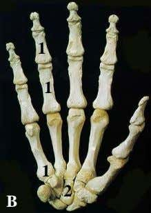 OSTEOLOGY. Types of bones 1 1 1 C B 2 D F E What are the